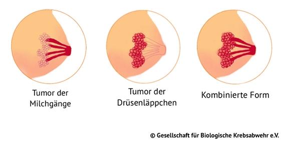 Abb. 2: Die wichtigsten Arten von Brustkrebs - Tumor der Milchgänge - Tumor der Drüsenläppchen - Kombinierte Form